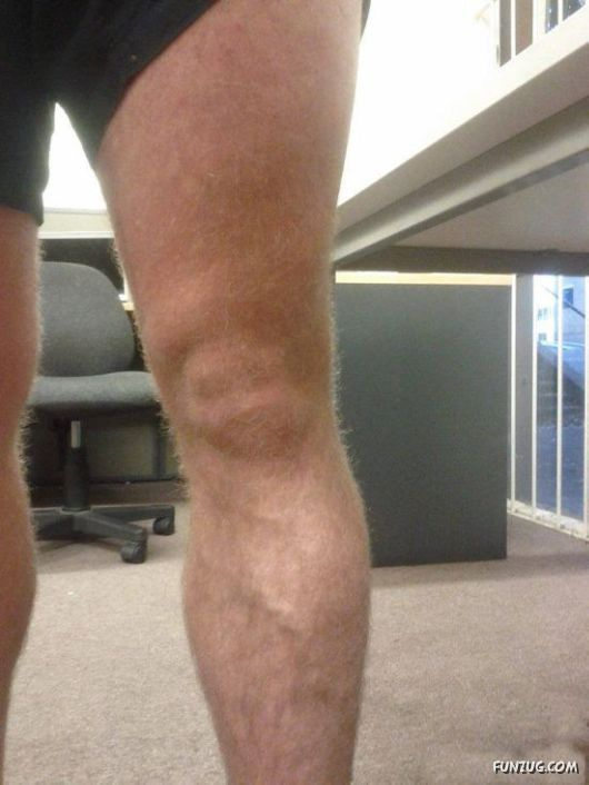 Knees That Look Like Faces